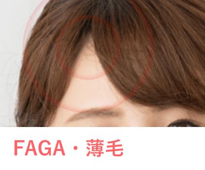 AGA・薄毛