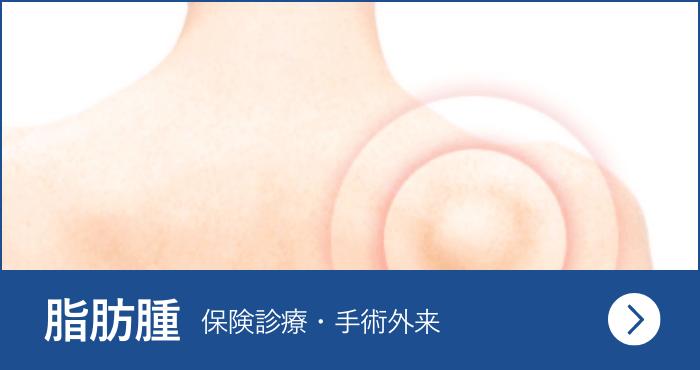 脂肪腫<span>(保険診療・手術外来)</span>
