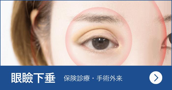 眼瞼下垂<span>(保険診療・手術外来)</span>
