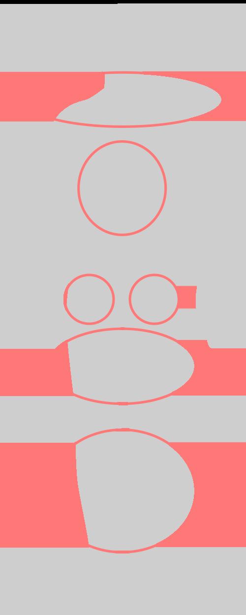 脂肪腫の発症部位
