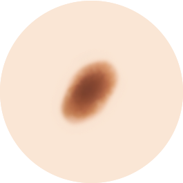Clark母斑