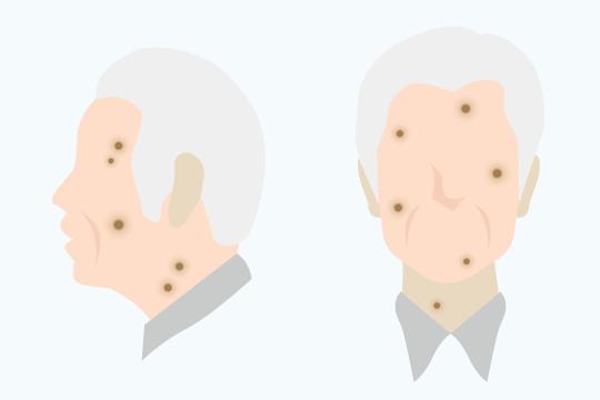 老人性疣贅(脂漏性角化症)