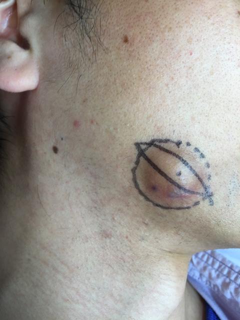 粉瘤 耳の付け根